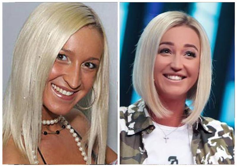 Ксения Собчак  фото до и после пластических операций