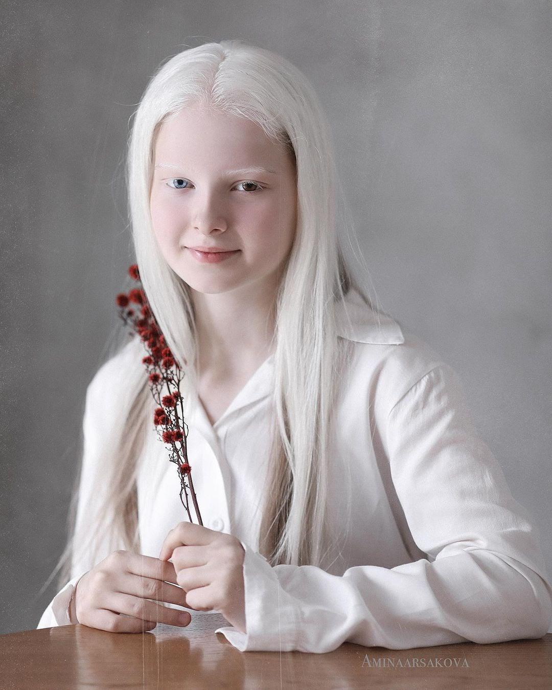 Амина Эпендиева: невероятная девочка-альбинос с разноцветными глазами из Чечни. Как выглядит сегодня и потеряла ли красоту 3