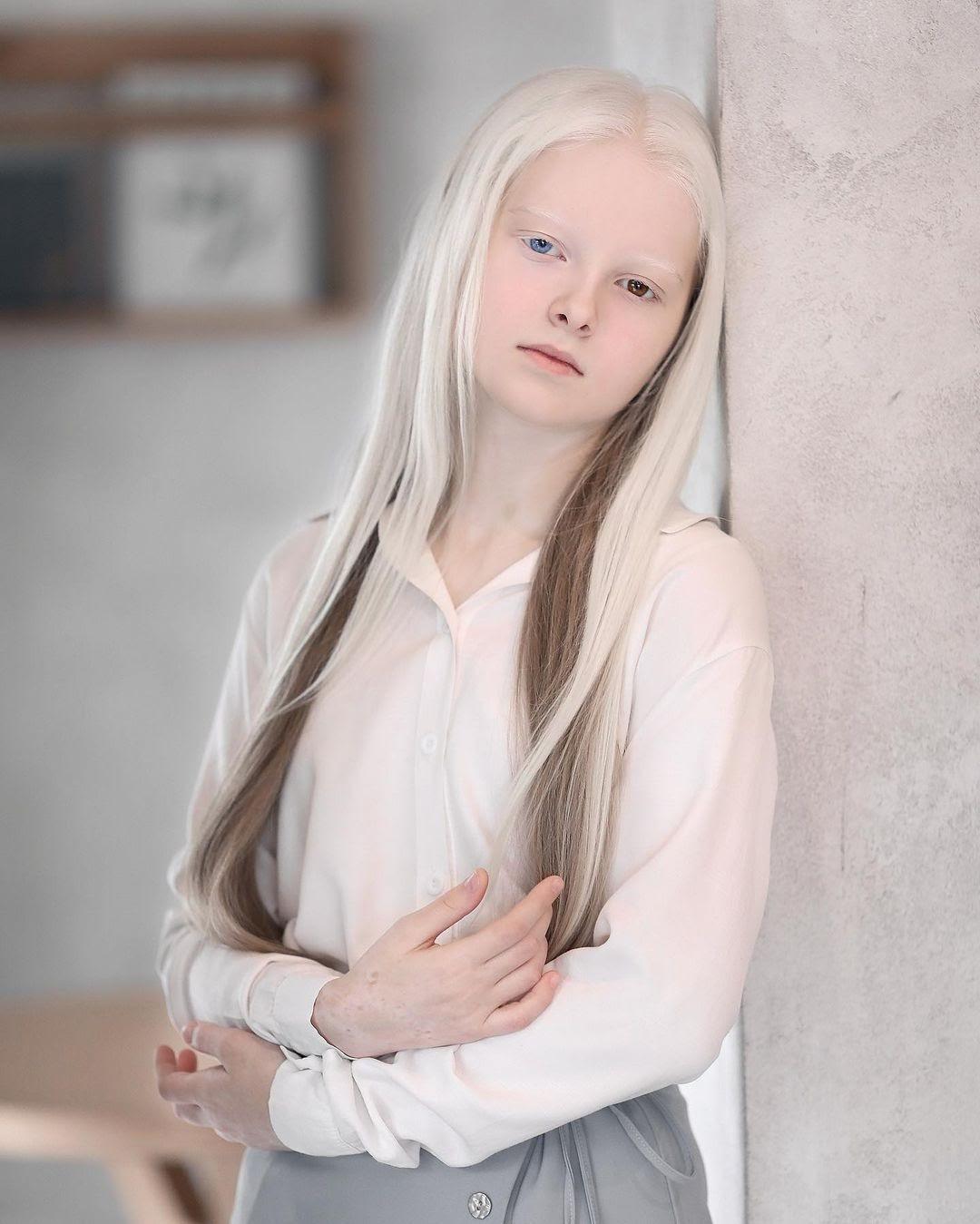 Амина Эпендиева: невероятная девочка-альбинос с разноцветными глазами из Чечни. Как выглядит сегодня и потеряла ли красоту 5