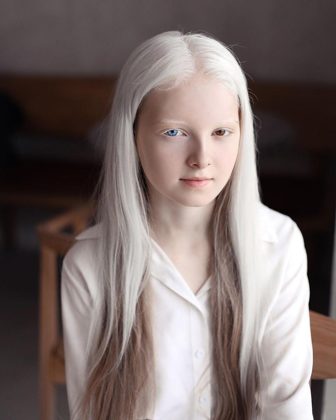 Амина Эпендиева: невероятная девочка-альбинос с разноцветными глазами из Чечни. Как выглядит сегодня и потеряла ли красоту 7